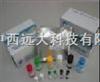 人胶原酶II(Collagenase II)ELISA试剂盒 96T 型号:YS188-00814B